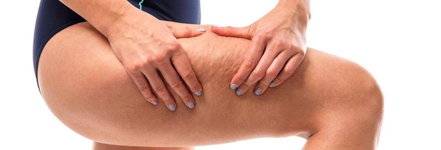Enlever la cellulite et éliminer la peau d'orange